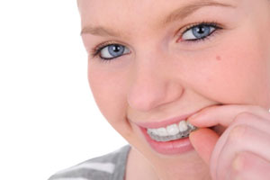 Woman using invisalign clear aligners
