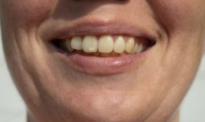 person with white spot on tooth
