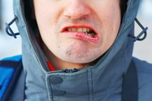 closeup of man with winter mouth issues