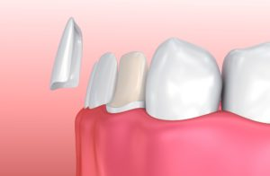 Model showing how much enamel needs to be removed for veneers